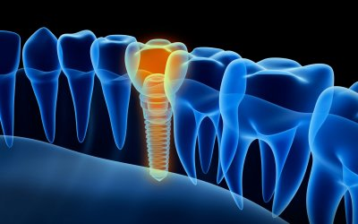 Dental Implants Parkway Clinic