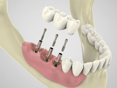 AnyRidge Teeth in a day Implants Parkway Clinic