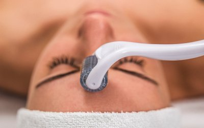 Face microneedling treatment with a meso roller. 854049384 human, product, treatment, face, medical, body, white, beautiful, young, woman, closeup, healthy, health, lifestyle, facial, clinic, peeling, mask, alternative, female, cosmetology, cosmetic, massage, wellness, microneedling, mesotherapy, microneedle, roller, micro, needling, needle